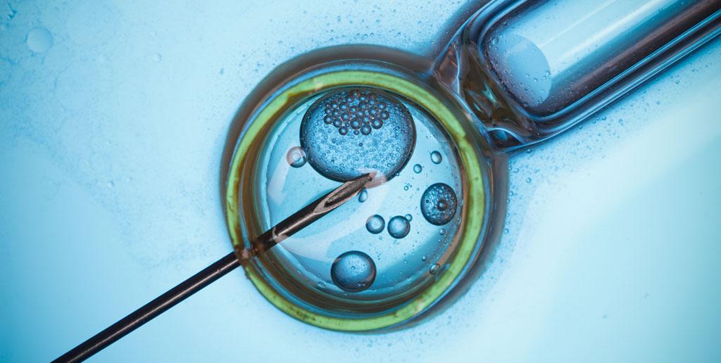 evolución de los métodos de reproducción: antes y ahora